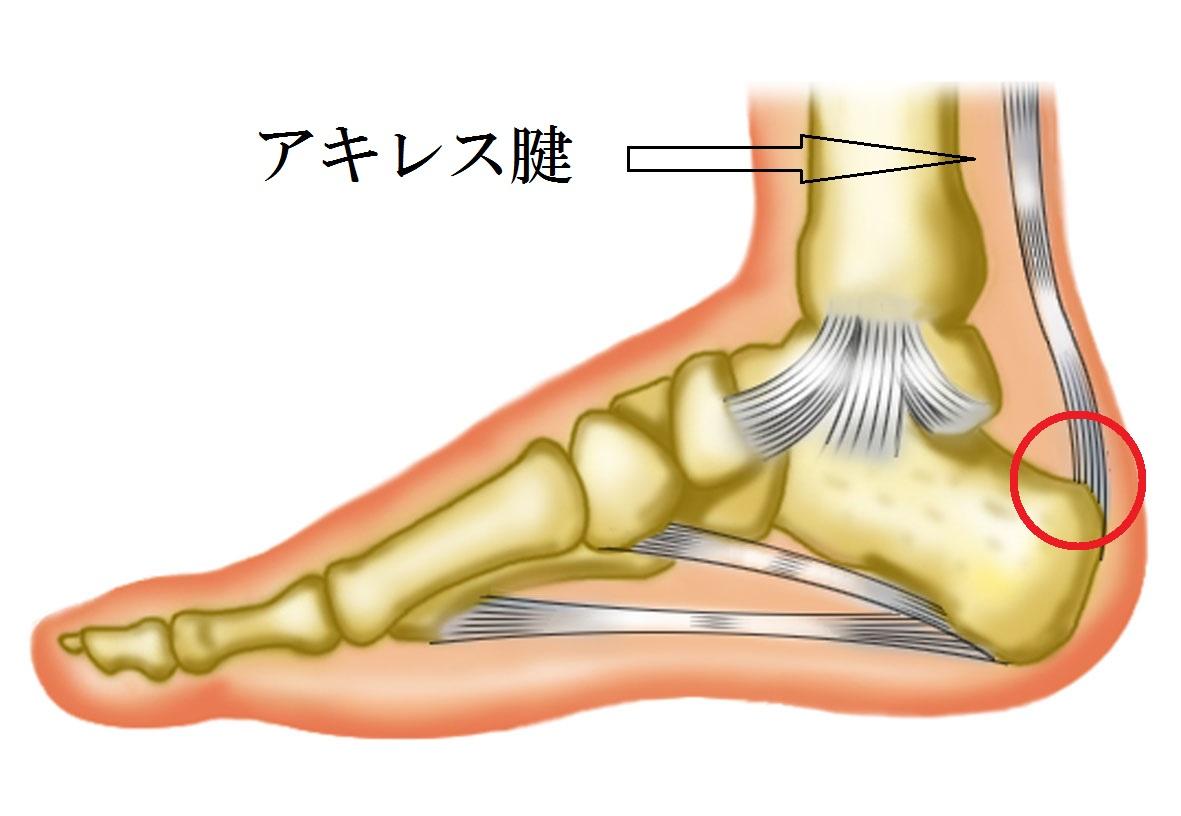 アキレス腱炎.jpg